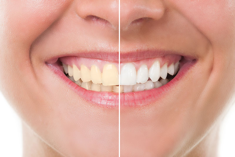 Teeth Whitening - Quimson Dental Care, San Francisco Dentist